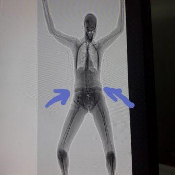 Operação bloqueio prende visitante com drogas no cós da calça, em Bangu