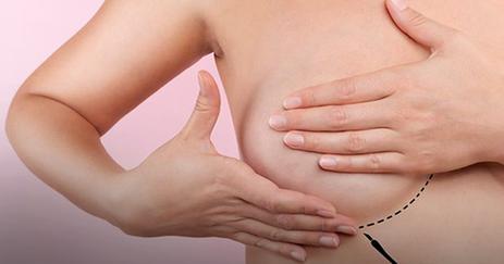 Abertas inscrições para mulheres mastectomizadas implantarem próteses