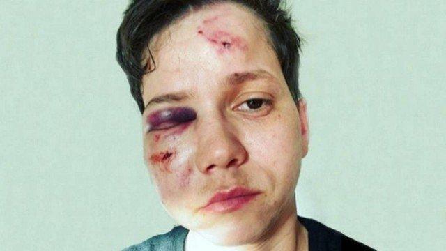 Após depoimentos, delegada volta atrás e diz que ataque a Karol Eller não foi homofóbico