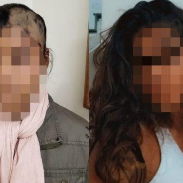 Bombeiro é acusado pela ex-mulher de agredir e raspar cabelo da filha por ciúmes