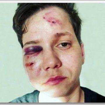 Polícia investiga agressão a youtuber na Barra da Tijuca, na Zona Oeste do Rio