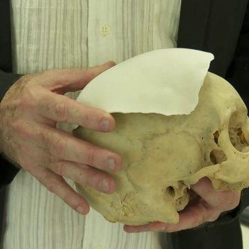 Projeto na Fiocruz desenvolve nova tecnologia 20 vezes mais barata para reconstruir defeitos ósseos