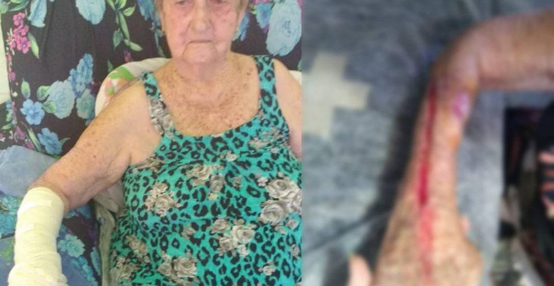Crivella inaugura tomógrafo em hospital onde idosa foi cortada ao retirar gesso e pede desculpas