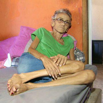 Debilitada e com 35 kg, paciente com câncer espera há 6 meses por tratamento no Hospital Cardoso Fontes
