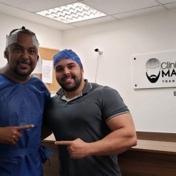 Marcelo Tchakabum faz implante capilar para ficar cabeludo igual a Jack Sparow
