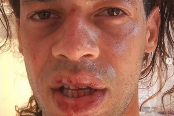 Irmão de repórter da Rede Globo é agredido por sete homens e denuncia homofobia