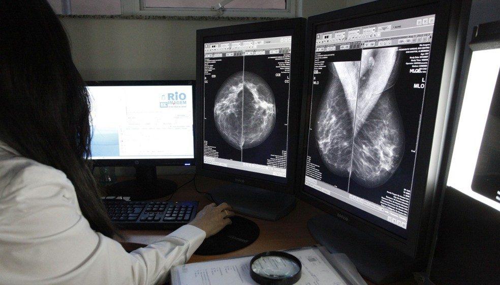 Outubro Rosa: saiba como fazer mamografias gratuitas no RJ